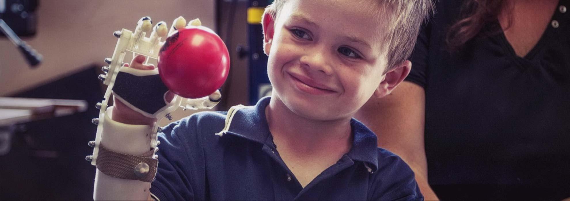 Мальчик опробует напечатанный на 3Д принтере протез