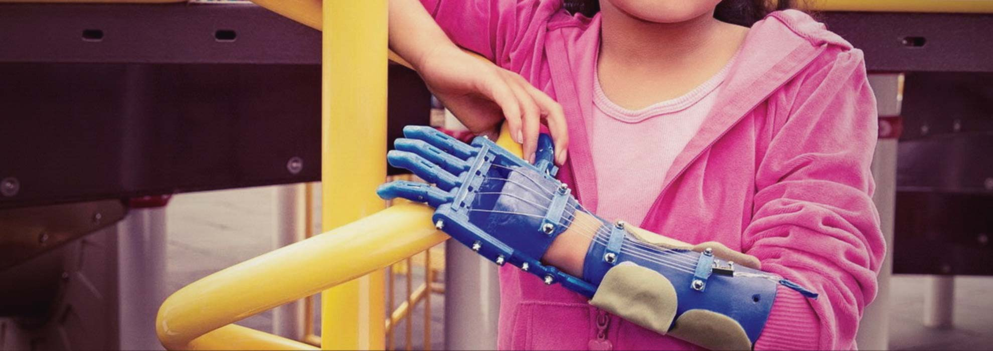 3D печать медицина протез