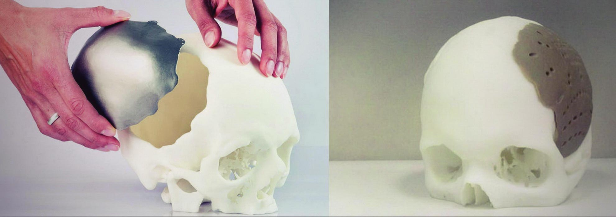 Макет части черепа для изготовления титановой пластины