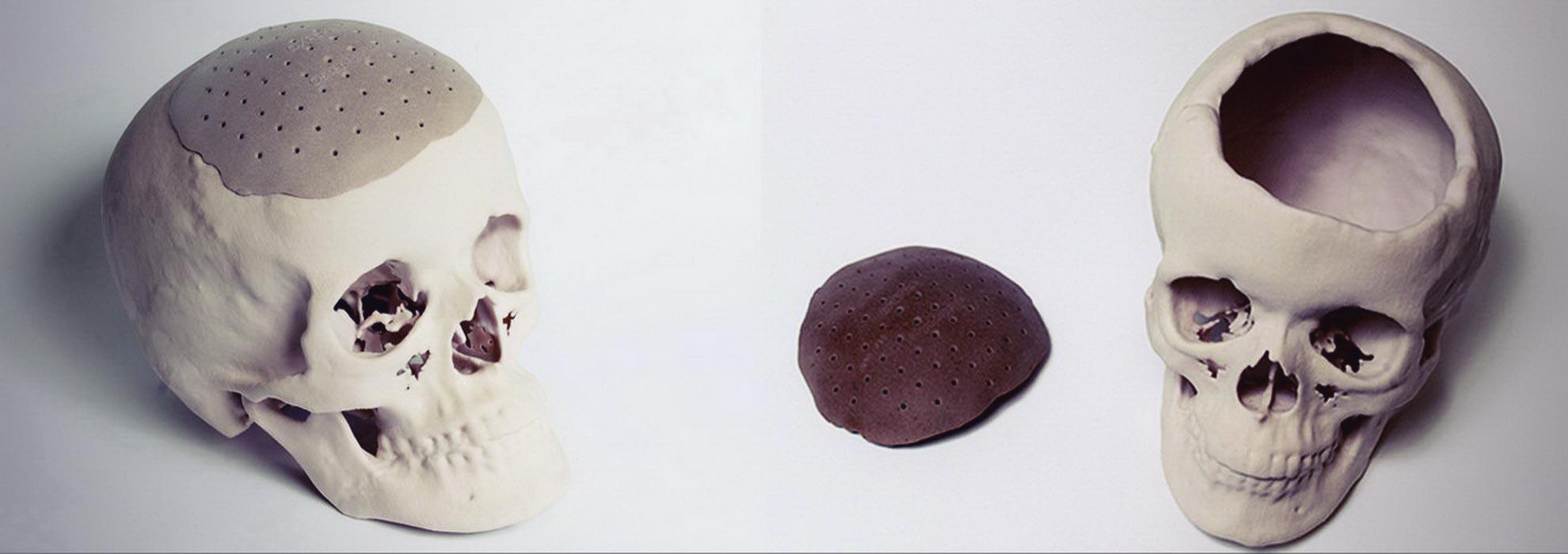 Часть кости черепа изготовленная на 3Д принтере